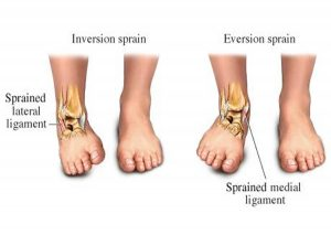 sprained ankle volleyball sports injury
